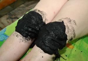 лечение псориаза грязями 1