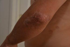лечение псориаза грязями 2